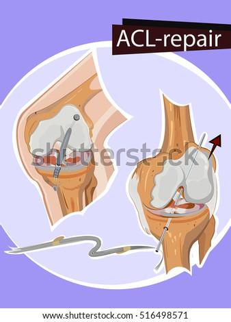 vector illustration of knee