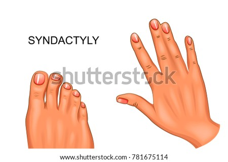 vector illustration of syndactyly. webbed hand and foot