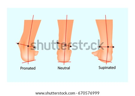 Vector illustration of the normal human foot and the foot with pronation and supination. Foot Biomechanics. Orthodic. Foto stock ©