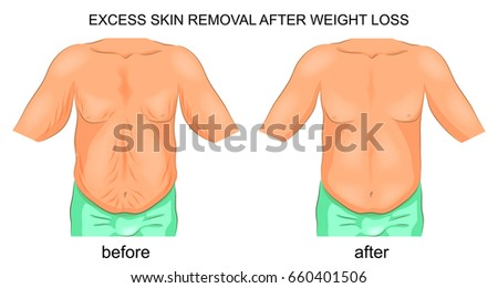 vector illustration of the removal of excess skin after weight loss Foto stock ©