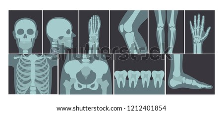 Vector illustration set of many X-rays shots of human body, X-ray pictures of head, hands, legs and other parts of body on white background. Foto d'archivio ©