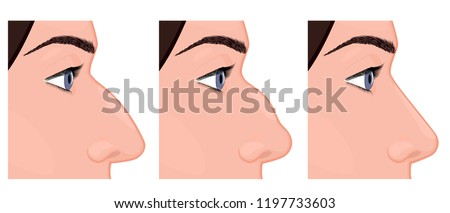 Vector illustration. Side view of a human nose before, after aesthetic plastic surgery - rhinoplasty (nose job). Close up view. For advertising, medical and beauty publications. EPS 10.