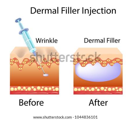 Vector illustration with cosmetic filler or Dermal fillers
