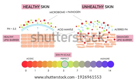 Vector scientific scheme of healthy and damaged skin building, comparison. Acidic alkaline ph scale impact on lipid barrier acid mantle. Microbiome protection film layer. Anatomical info graphic poster Сток-фото ©