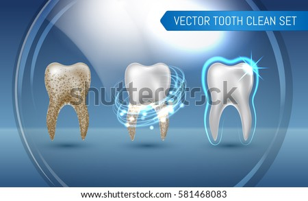 Vector set of 3d realistic clean and dirty tooth on blue background, clearing tooth process. Teeth Whitening. Dental health Concept. Oral Care, teeth restoration