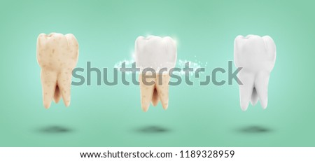 vector set of three molars
