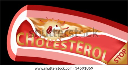 vector vein with cholesterol block