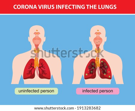 Vectorial imaginary representation of the damage caused by the corona virus in the lungs Stok fotoğraf ©