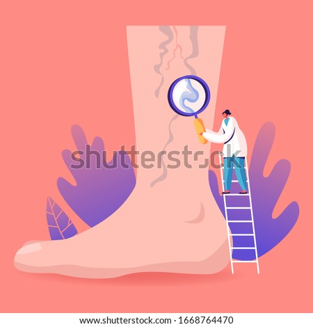 Vein Thrombosis and Varicose Treatment Concept. Tiny Doctor Character Stand on Ladder with Magnifying Glass Looking on Huge Foot with Diseased Veins. Health Care, Podiatry. Cartoon Vector Illustration Stock photo ©