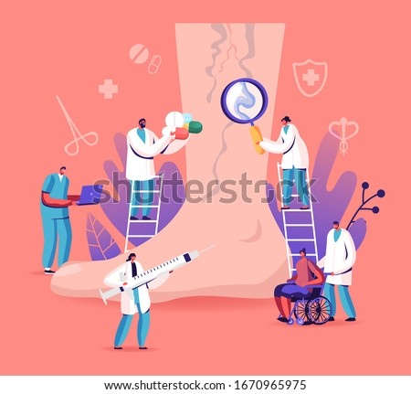 Vein Thrombosis and Varicose Treatment Concept. Tiny Doctor Characters with Medical Instruments and Drugs around of Huge Foot with Diseased Veins, Health Care. Cartoon People Vector Illustration Stock photo ©