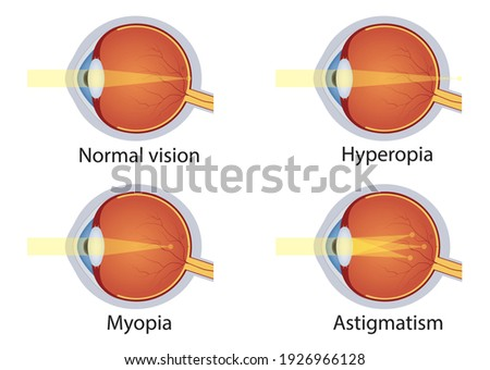 Vision disorders. Concept of eyes defect. Normal vision, hyperopia, myopia, astigmatism. Anatomy eyeball. Vector