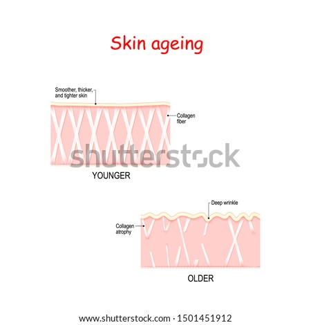 Visual representation of skin changes over a lifetime. in Young skin Collagen and elastin form the structure of the dermis making it tigh. In aging skin atrophy of collagen fibers formed wrinkles