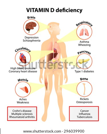 Vitamin D deficiency. symptoms and diseases caused by insufficient vitamin D. Symptoms & Signs. Human silhouette with highlighted internal organs