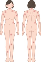 Whole body of woman, suffers from a skin disease; scratching.