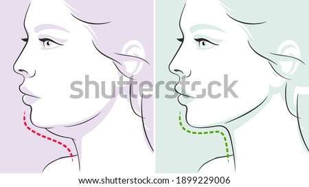 Woman profile, double chin, before-after. Woman face. Vector illustration