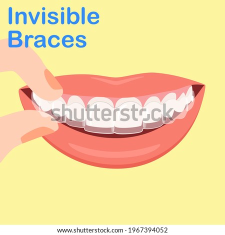 Woman wearing orthodontic silicone trainer. Invisible braces aligner. invisalign braces or invisible retainer. beautiful smile. using removable braces or aligner for straightening and whitening teeth.