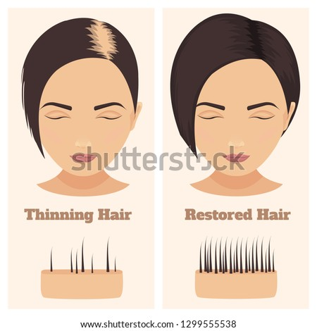 Woman with thinning and restored hair. Female pattern alopecia set with skin cross-section diagram. Before and after concept. Vector illustration.