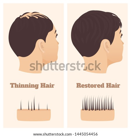 Woman with thinning hair before and after hair loss regrowth. Female pattern baldness set with skin cross-section diagram. Treatment result in side view. Alopecia infographics medical vector template.