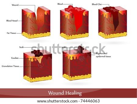 Skin Wound Healing Process