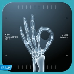 X-ray of both human hand (OK!), vector Eps 10 illustration.