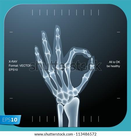 x ray of both human hand  ok