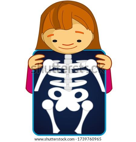 X ray, röntgen. Xray shows the breast, ribs, spine, and pelvis bones. Cartoon body x-ray of child girl character. Dark roentgen film. Medical educational drawing.  Biology illustration Vector Stock fotó ©