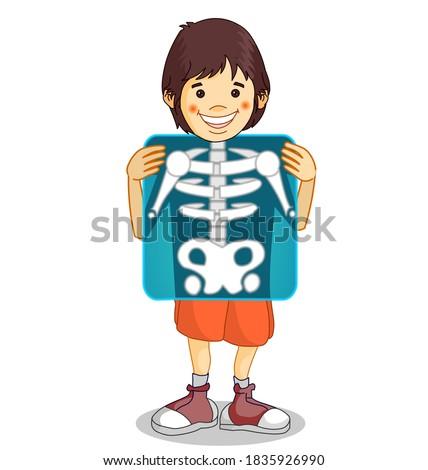 X-ray, Roentgen. Röntgen film. Xray shows the breast, ribs, spine, and pelvis bones. Cartoon body x ray of child boy character. Medical educational drawing.  Biology, radiology illustration Vector Stock fotó ©