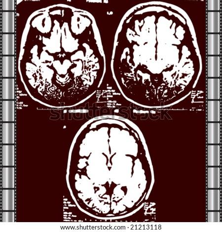 X-Ray Skull -Vector Art-
