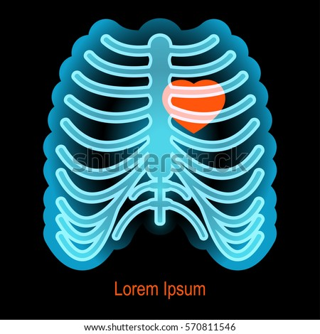 X-ray Chest radiograph Lung Radiography Thorax, lung transparent background  PNG clipart   HiClipart