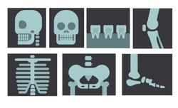 Xray of human body, teeth and bone in flat design illustration vector