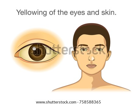 Yellowing of the eyes and skin. Illustration about abnormal symptom of human body from health problems.