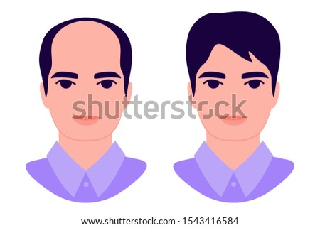 Young man baldness problem. Male with alopecia before and after. Hair loss. Hair treatment, transplantation, health and beauty concept. Isolated vector illustration on white background