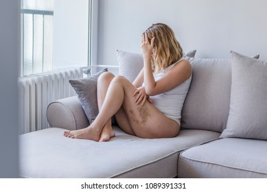 Stop hurting woman! Mutilated women cover her bruised face with shame. Young woman with a hematoma at her upper thighs. Woman sitting on bed in room with light from window abuse concept