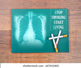 Stop smoking start living word and chest x-ray film with cigarette in green chalkboard on wooden background.