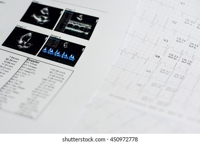 Strength evaluation test with echocardiogram in hospital