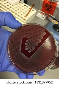 Streptococcus Group B or Streptococcus agalactiae in Blood Agar plate with contaminants. No hemolysis seen.