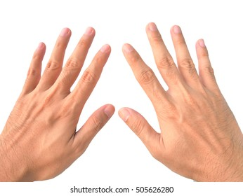 Stretch hand, finger, counting ten with swelling joint finger isolated on the white background.