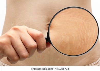 Stretch marks the abdomen through a magnifying glass.
