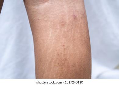 Stretch marks at leg