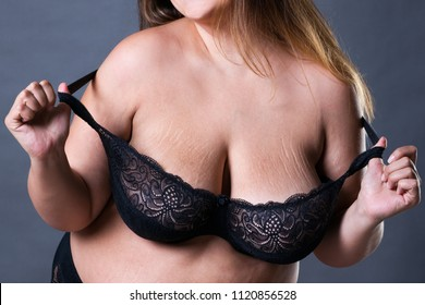 Stretch marks on a large natural breasts, obese woman with big boobs, overweight female body isolated on white background