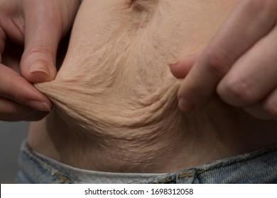 Ugly female body