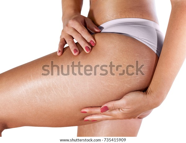Stretch marks on woman's thighs and buttocks