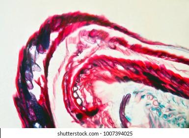 Strobile female pine under the microscope