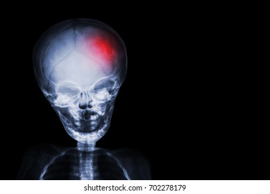 Stroke . film x-ray skull and body of child with red color at head . Neurological concept .