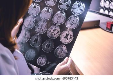 stroke on MRI file  multiple small hemorrhagic