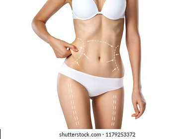 Studio HD capture of a unrecognizable young woman torso in underwear with the drawing arrows and medical marks. Fat lose, liposuction, cellulite removal and skin lifting concept.