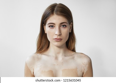 Studio shot of beautiful young woman with naked shoulders demonstrating pale vitiligo patches on her skin posing against blank wall background with copy space for your text or advertising content