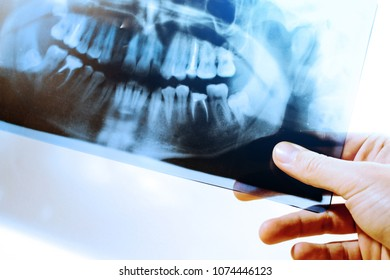 to study an x-ray of teeth, toned