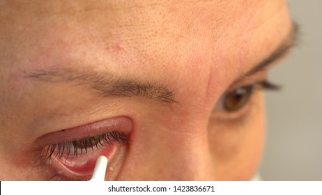 A stye, a hordeolum, is a bacterial infection of an oil gland in the eyelid.This results in a red tender bump at the edge of the eyelid.The outside or the inside of the eyelid can be affectedLocalized
