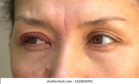 A stye, a hordeolum, a bacterial infection of an oil gland in the eyelid. A lump on the top eyelid. Mucous discharge in the eye